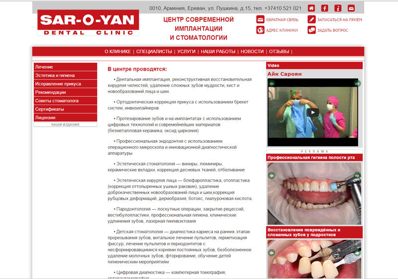 """Сайт центра современной стоматологии и имплантации """"Sar-o-yan dental clinic"""""""